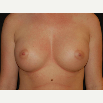 25-34 year old woman treated with Breast Implants after 3650987