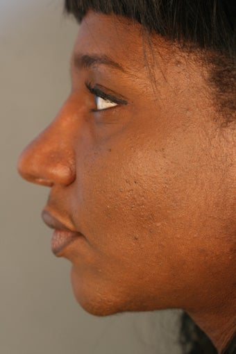 African American female unhappy with prior rhinoplasty done elsewhere