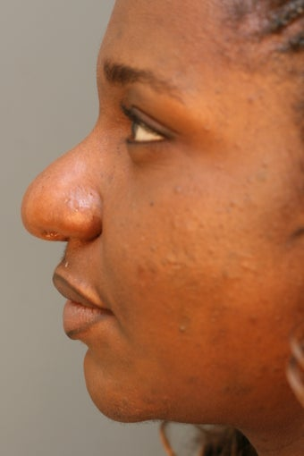 African American female unhappy with prior rhinoplasty done elsewhere before 671618