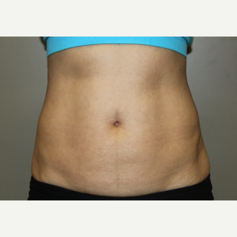 45-54 year old woman treated with SculpSure after 3115624
