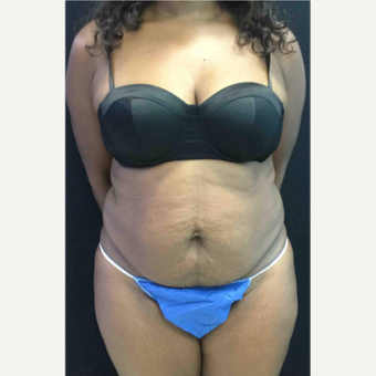 45-54 year old woman treated with Tummy Tuck before 3481537