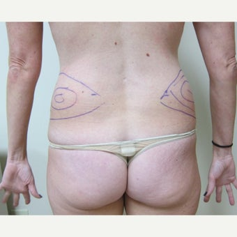 35-44 year old woman treated with Laser Liposuction before 2618667
