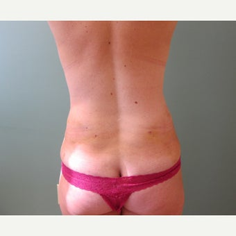 35-44 year old woman treated with Laser Liposuction after 2618667
