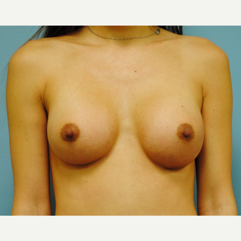 28 year old woman treated with Breast Implants, A to B cup, 330 cc high profile after 3731429