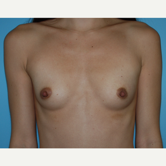 28 year old woman treated with Breast Implants, A to B cup, 330 cc high profile before 3731429