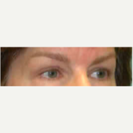 Eyelid Surgery after 3058020