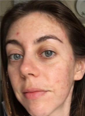 25-34 year old woman treated with Restylane before 3836232