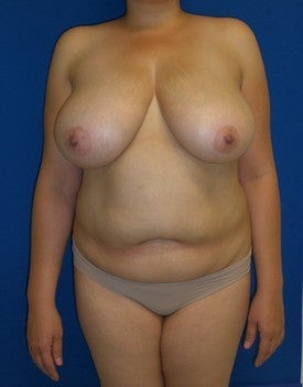 Tummy Tuck and Breast Lift before 179133