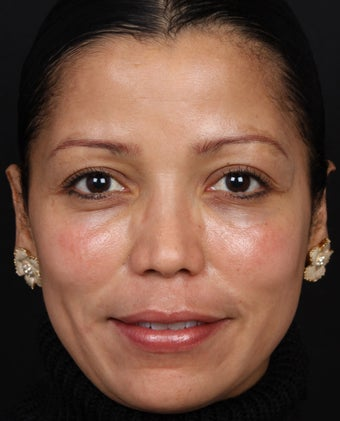 Cosmelan for Melasma after 539871