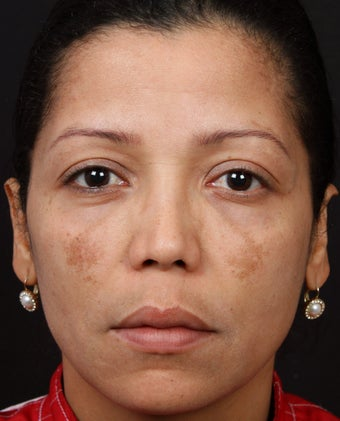 Cosmelan for Melasma before 539871