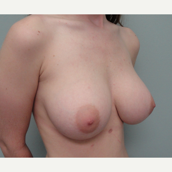 25-34 year old woman treated with Breast Augmentation after 3823095