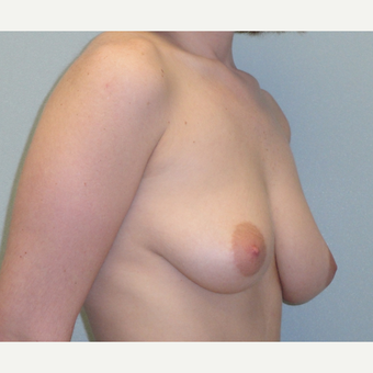 25-34 year old woman treated with Breast Augmentation before 3823095