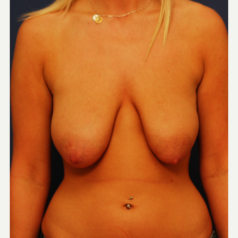 18-24 year old woman treated with Breast Lift before 3619195