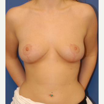 18-24 year old woman treated with Breast Lift after 3619195