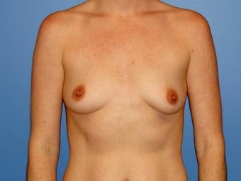 Breast augmentation with saline implants before 78757