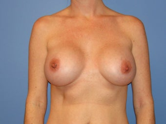 Breast augmentation with saline implants after 78757