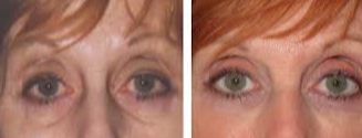 55-64 year old woman treated with Restylane before 1775144