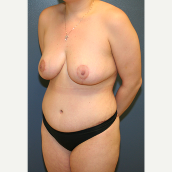 25-34 year old woman treated with Mommy Makeover after 3475486