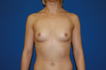 18-24 year old woman treated with Breast Augmentation before 1550256