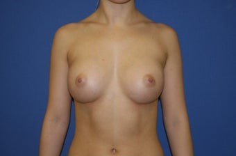 18-24 year old woman treated with Breast Augmentation after 1550256