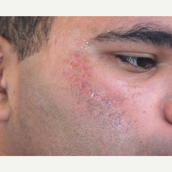 18-24 year old man treated with Scars Treatment after 3758670