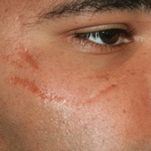 18-24 year old man treated with Scars Treatment before 3758670