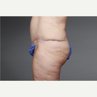45-54 year old woman treated with Tummy Tuck after 3046744
