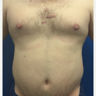 25-34 year old man treated with Laser Liposuction before 3495886