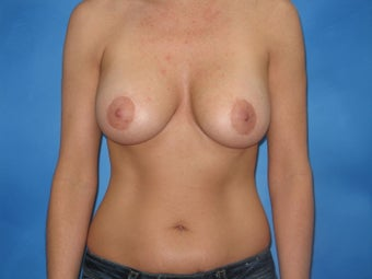 Augmentation Mastopexy after 159263