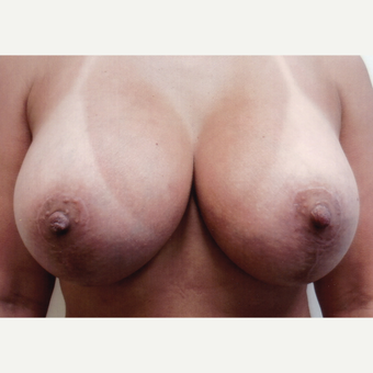 35-44 year old woman treated with Breast Lift with Implants after 3108432