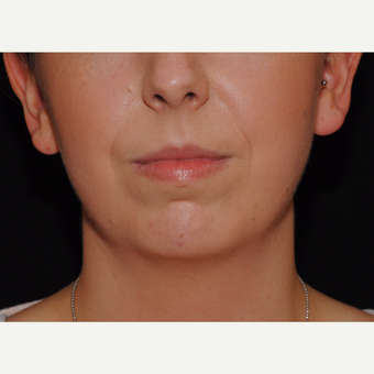 Patient with lack of chin projection undergoes Facial Fat Transfer and Precision TX Facial Liposucti before 3461181