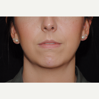 Patient with lack of chin projection undergoes Facial Fat Transfer and Precision TX Facial Liposucti after 3461181