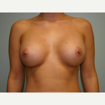 Breast Augmentation after 3444171