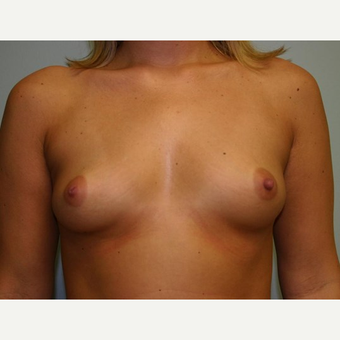 Breast Augmentation before 3444171