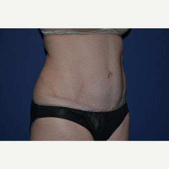 35-44 year old mother of twins treated with Tummy Tuck after 3004915
