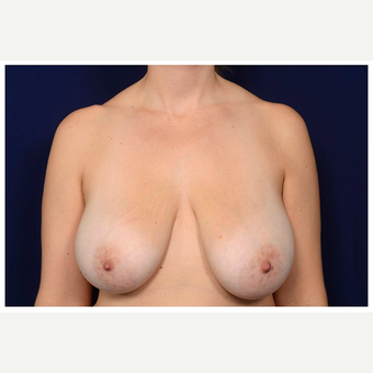 35-44 year old woman treated with Breast Reduction before 3075392