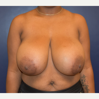 25-34 year old woman treated with Breast Reduction before 3553386