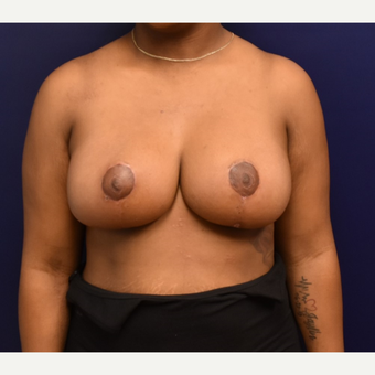 25-34 year old woman treated with Breast Reduction after 3553386