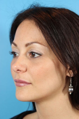 Botox and Fillers (Restylane and Juvederm) 936970