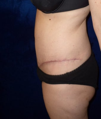 45yo Female treated for severe abdominal wall laxity and stretch marks post-partum  1456342