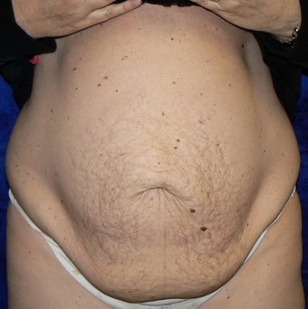 45yo Female treated for severe abdominal wall laxity and stretch marks post-partum  before 1456342