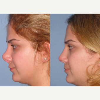 25-34 year old woman treated with Revision Rhinoplasty after 3521498