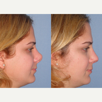25-34 year old woman treated with Revision Rhinoplasty before 3521498