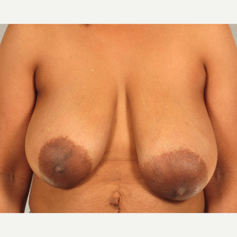 45-54 year old woman treated with Breast Reduction before 3781674