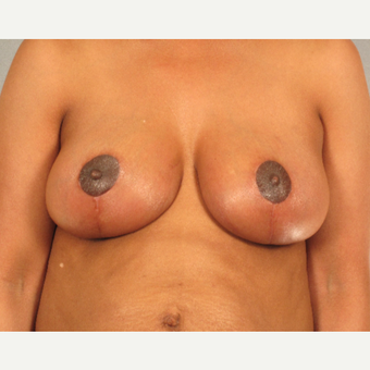 45-54 year old woman treated with Breast Reduction after 3781674
