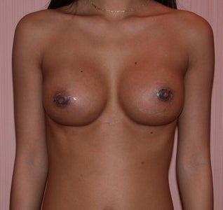 Breast augmentation, Symmastia Repair