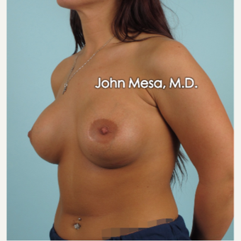18-24 year old woman treated with Breast Augmentation after 3266898