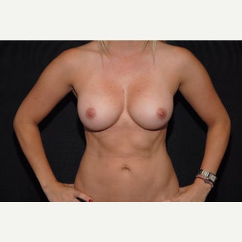 35-44 year old woman treated with Breast Implant Removal before 2073492