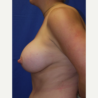Breast Augmentation after 3744225