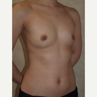 27 year old woman treated with Breast Fat Transfer before 2179980